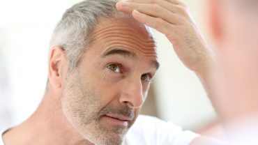 Treating the Roots of Hair Loss